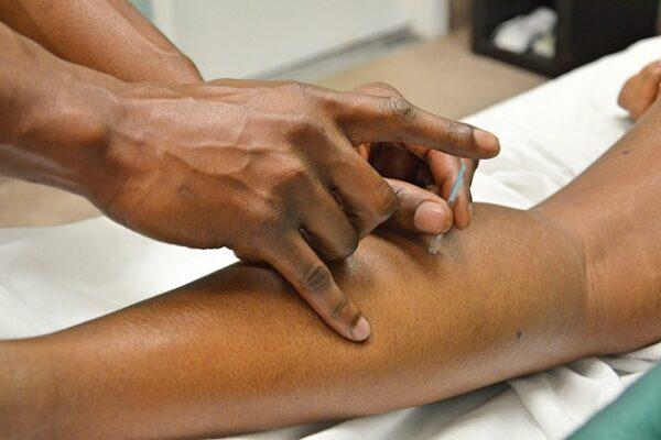 Akupunktur til behandling af sportsskader